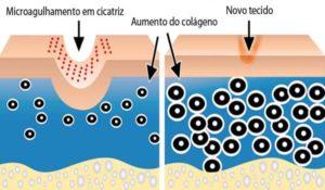 microagulhamento-info